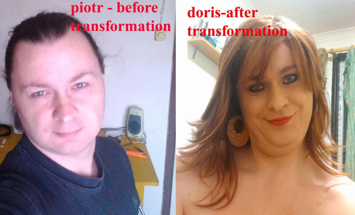 doris before and after